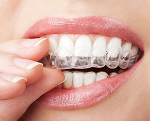 professional teeth whitening cost