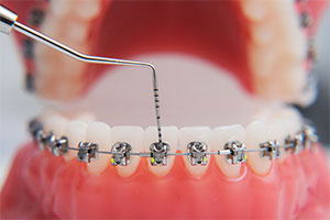 dental implants St George Utah