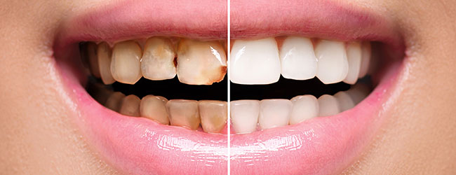 Cosmetic Dentistry St George UT